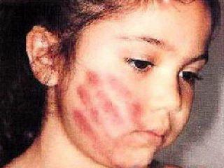Suriname FamilieNieuws mishandeling SLM
