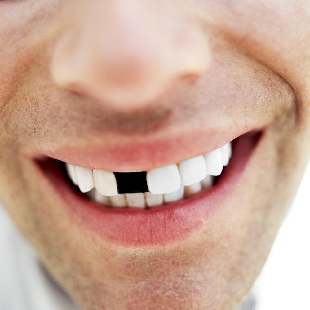 man tand vrouw slaat FamilieNieuws Suriname