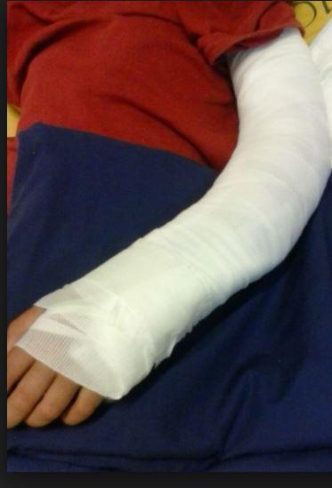 arm gebroken Paramaribo