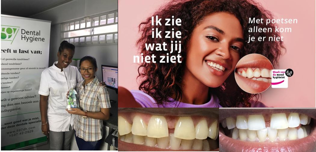 tanden Paramaribo
