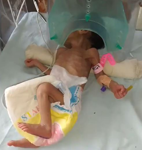 baby India