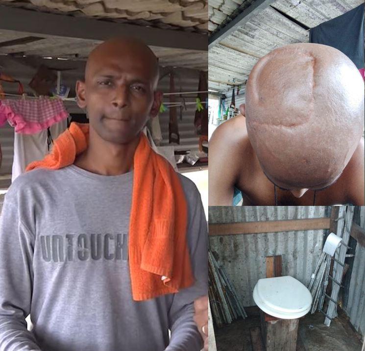 Video's – Jongeman smeekt de Surinaamse gemeenschap om hulp