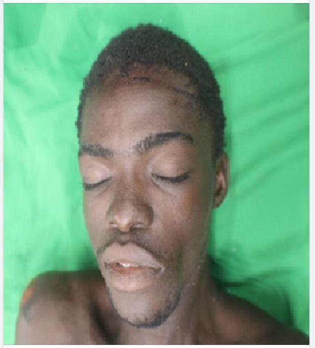 Wie kent deze dode jongeman? Politie Suriname